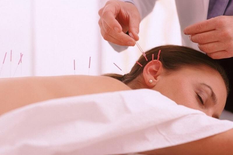 Akupunktura leczy ból