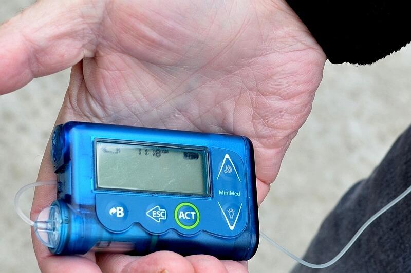 Pompy insulinowe