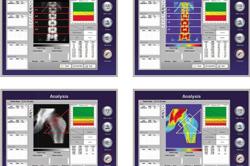 Jak rozpoznać osteoporozę?