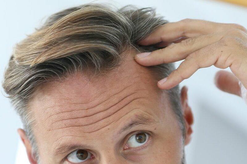 ABC wiedzy o tym - dlaczego łysiejemy?